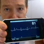 The iPhone Has Become Heart Healthy with iPhoneECG