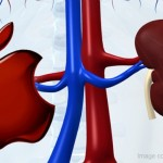 Nine Await Verdict In 'Kidney For iOS Device' Trial
