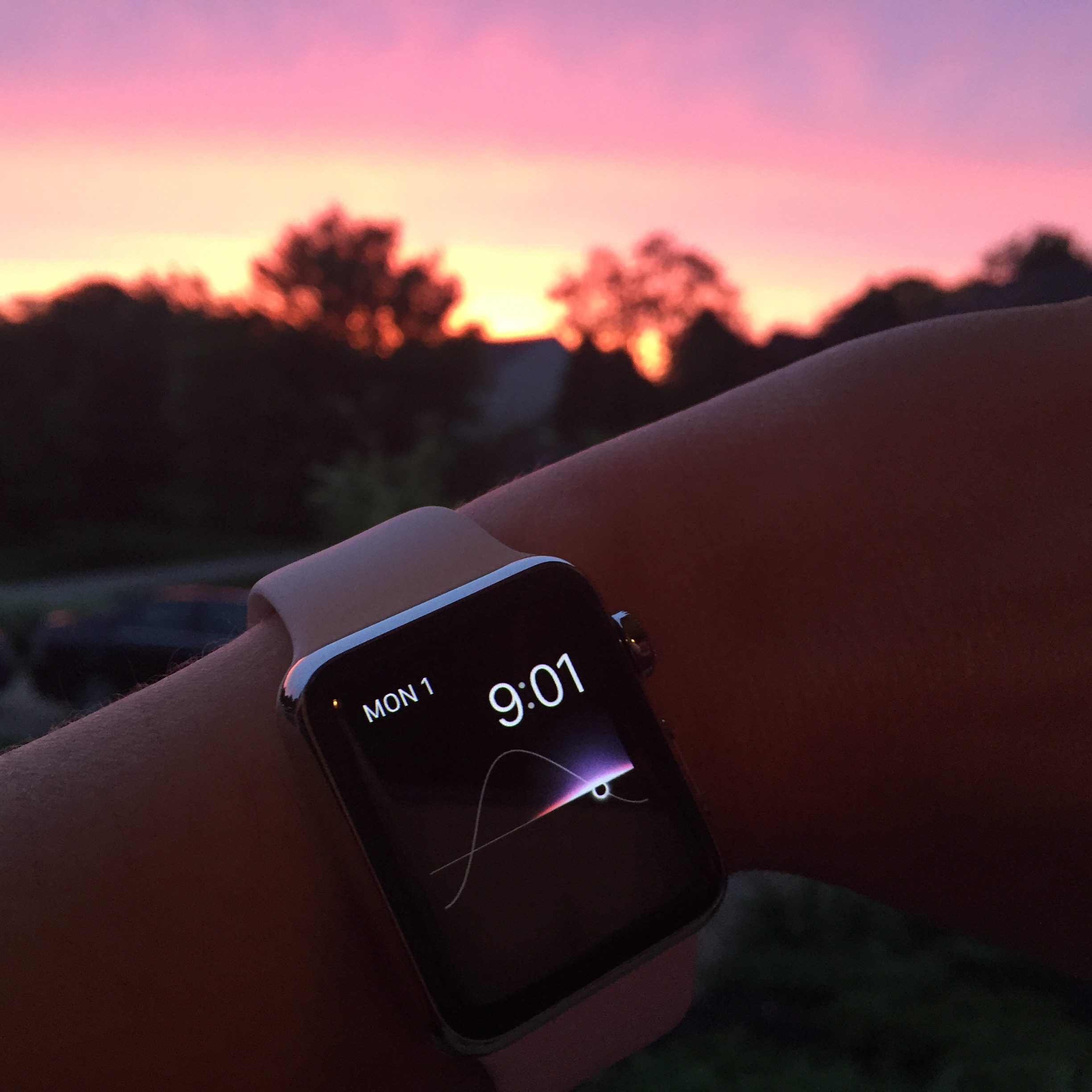 Late to the game, thoughts on Apple Watch after 3 months