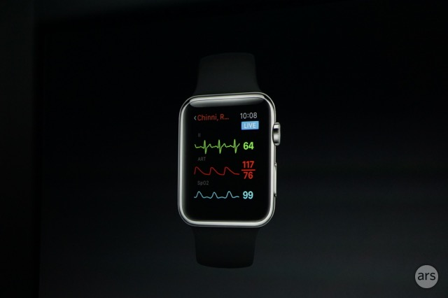 applewatch-vitals