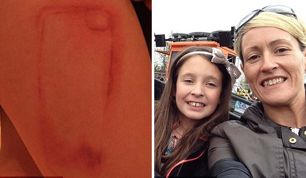 New Look case leaves 9-year-old girl with iPhone-shaped scar